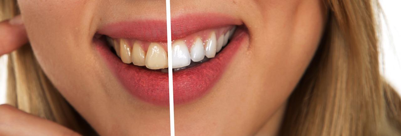 mimpi gigi putih